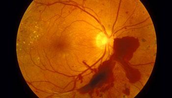 Augenlasern bei Diabetes-Patienten - 6 Voraussetzungen - CARE Vision Blog